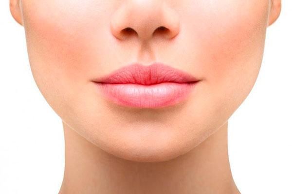 perfilado de labios con acido hialuronico